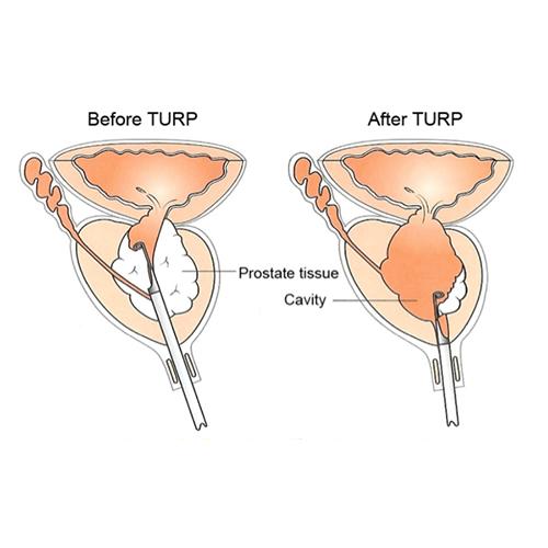 TURP Surgery